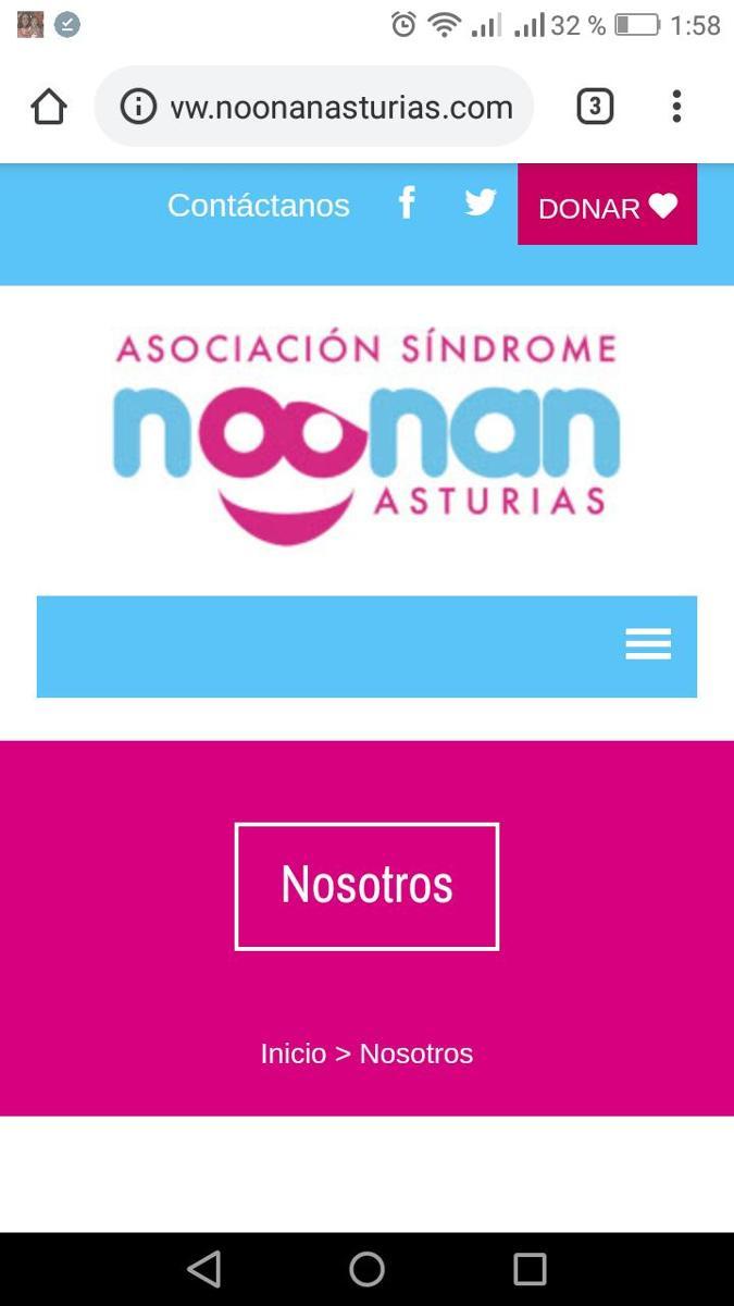 Síndrome Noonan Asturias