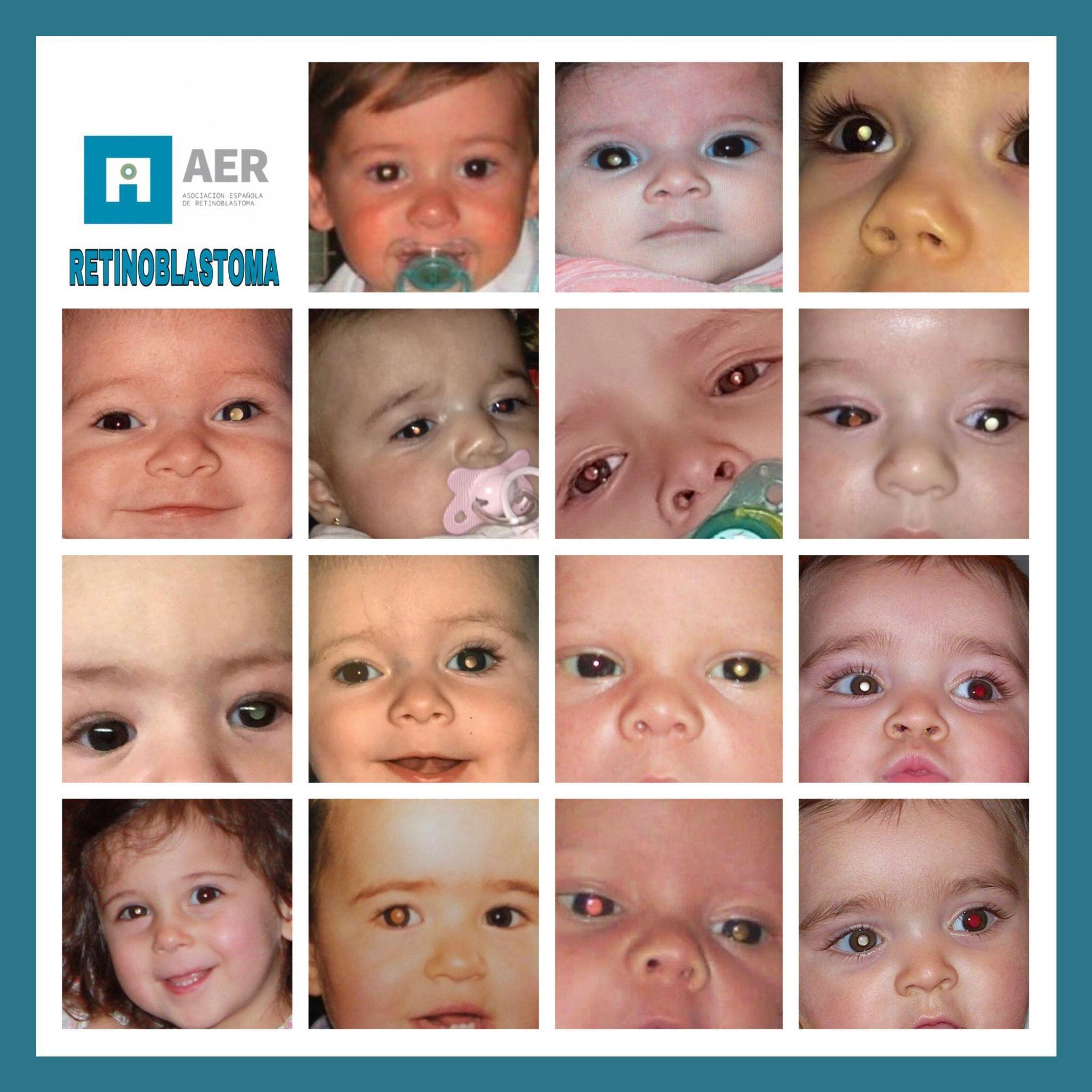 Our fight against Retinoblastoma