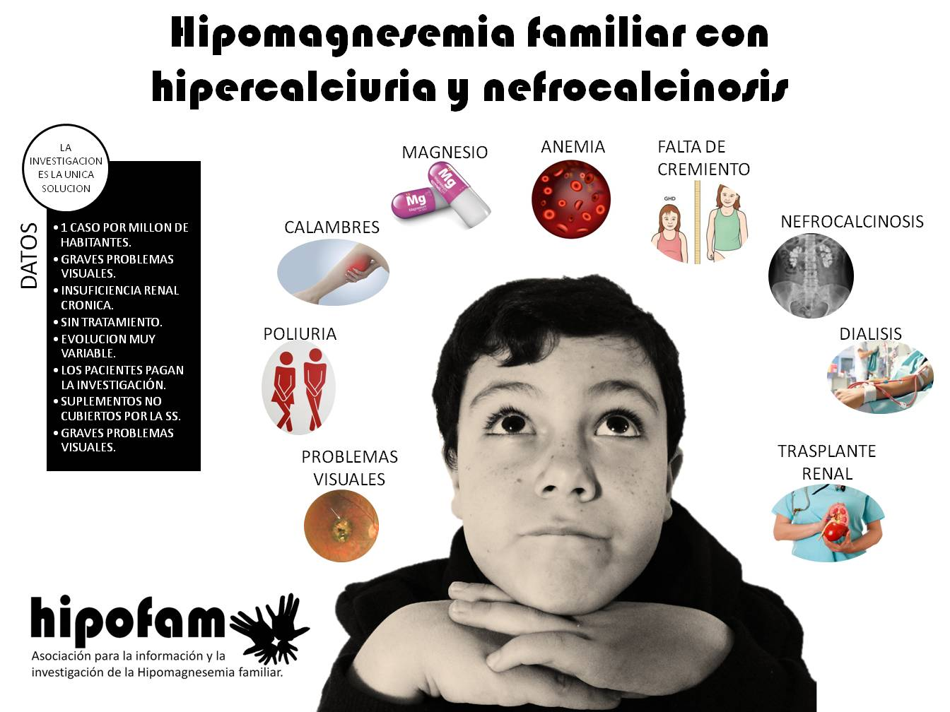 Hipomagnesemia familiar